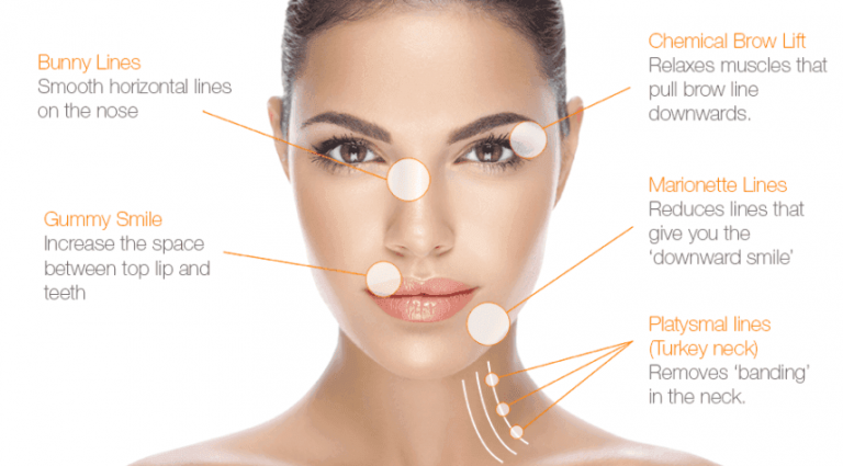 Botox Clinic Auckland