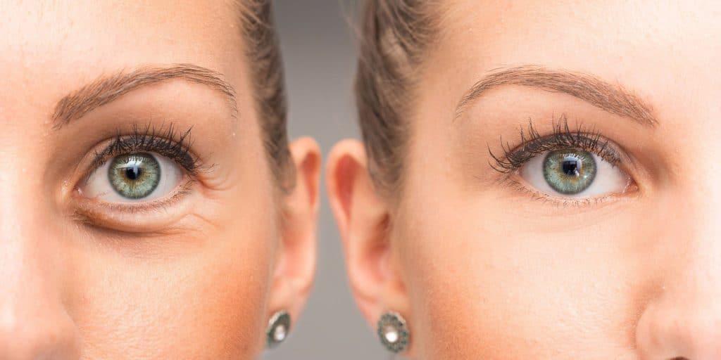 PLasmage Dark circles eye reduction auckland