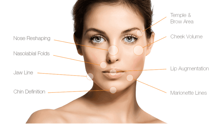 Dermal Filler Clinic Auckland
