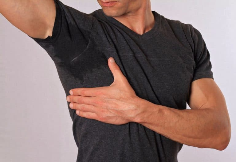 Excess sweat treatments Auckland
