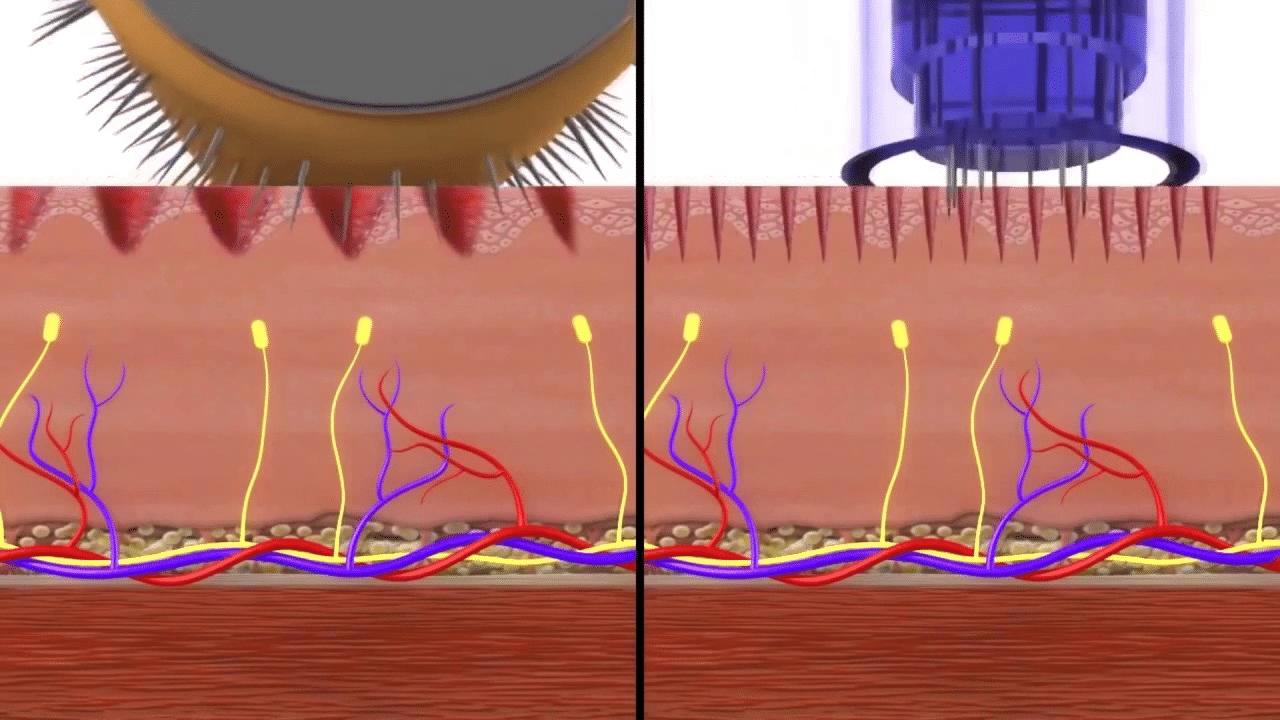 What is dermal needling