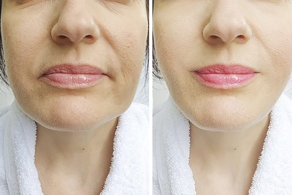 Look Less saggy using dermal fillers