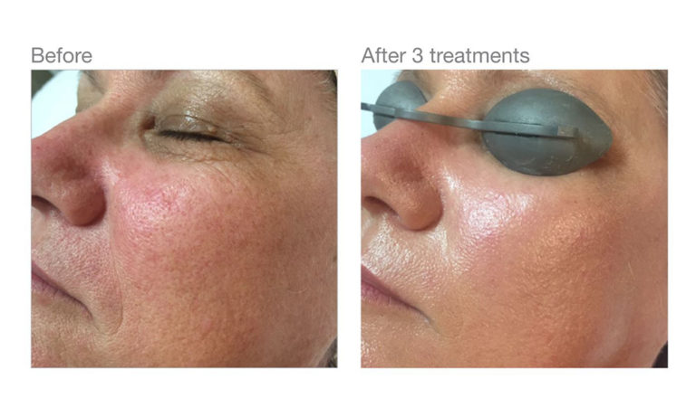 Before and after IPL treatments nz