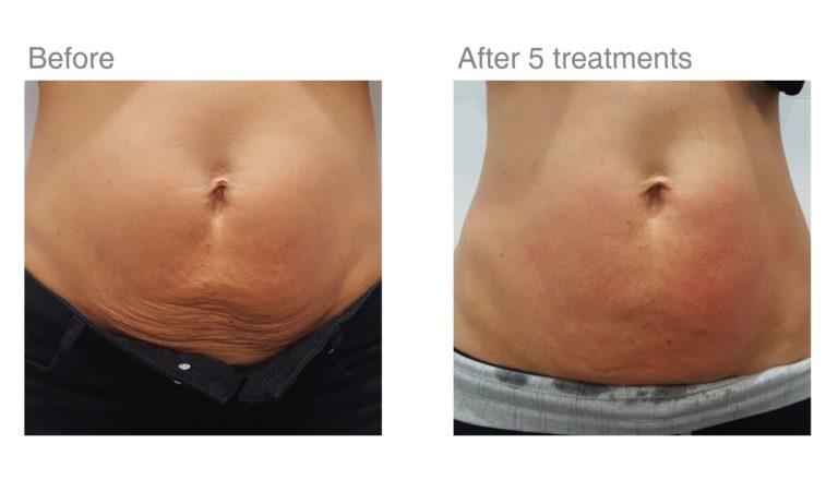 RF Skin Tightening treatments