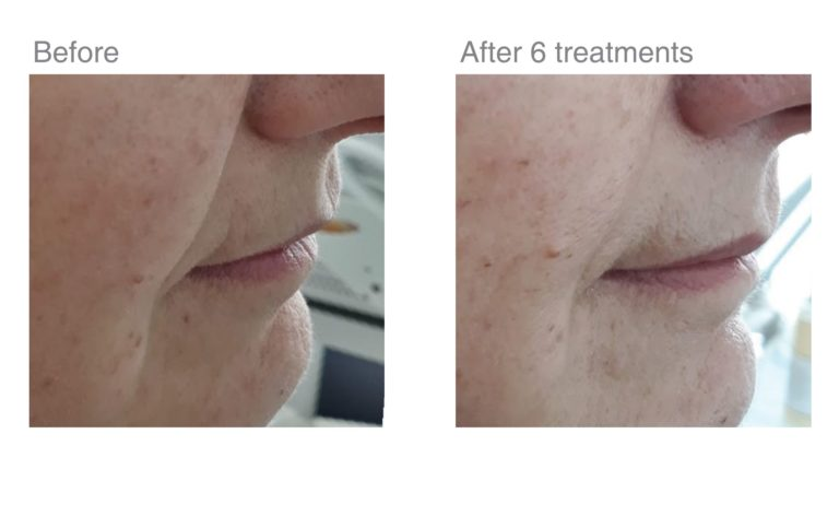 skin tightening jowls