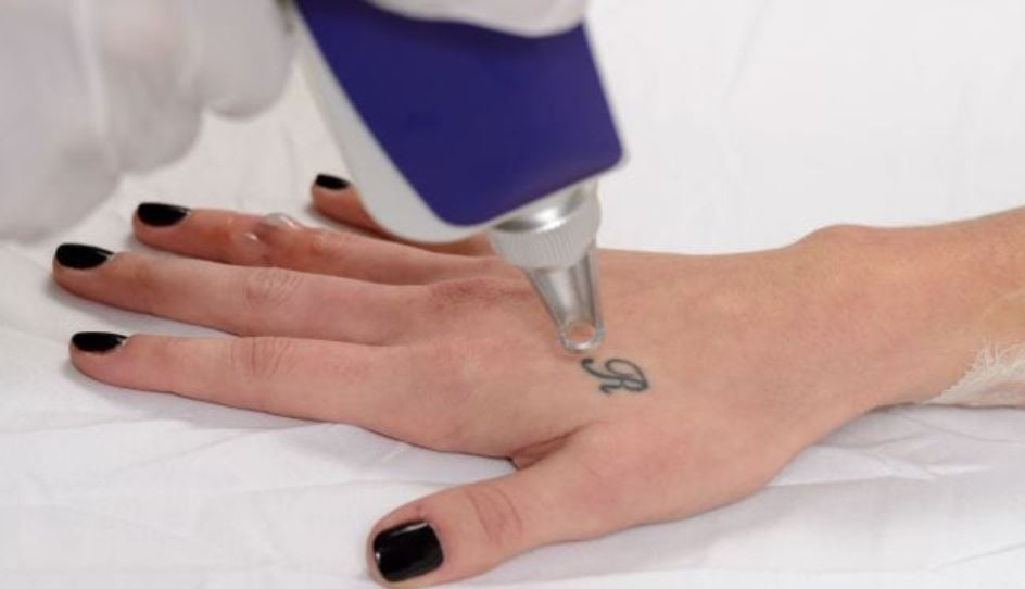 Tattoo Removal Auckland